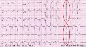 EKGinfarkmiokard