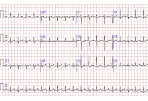sinustachycardia_with_AVblockI