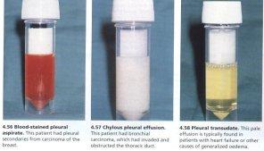 pemeriksaan penunjang efusi pleura yang disebabkan
