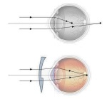 astigmatism1