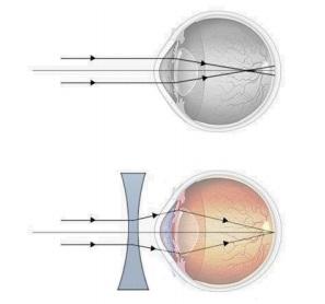 Dacă vederea se deteriorează după 45