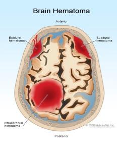 brain-hematoma