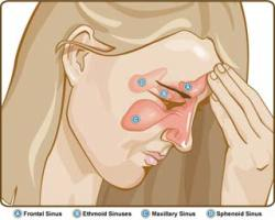 sinusitis-1
