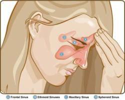 sinusitis-1
