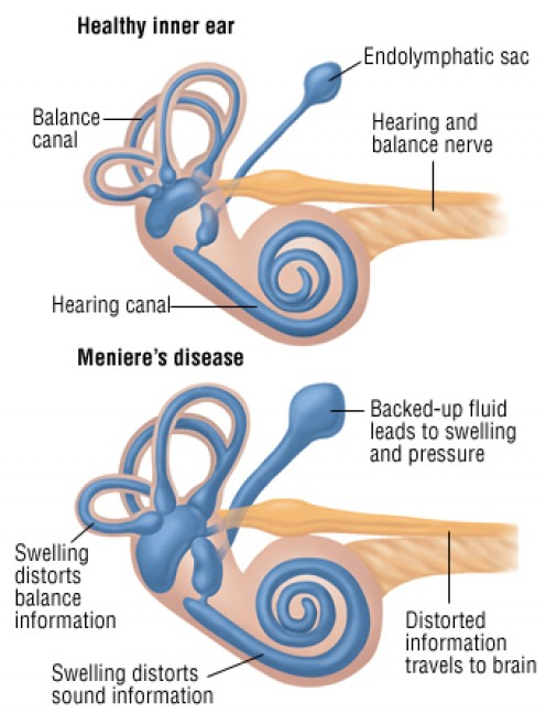 hearing disorders causes and treatments Meniere's disease (named after french physician prosper meniere) is a disorder of the inner ear with causes meniere's is a mysterious disease it is such a puzzle to physicians that there is no it is diagnosed by excluding other causes and by giving patients a hearing test a patient is said to.